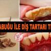 Ceviz Kabuğu İle Diş Tartarı Temizleme