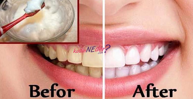 Karbonat Limon İle Diş Beyazlatma